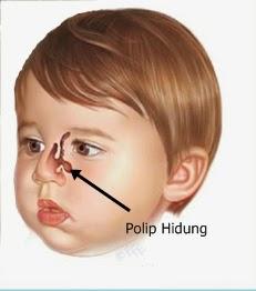 ppolip hidung
